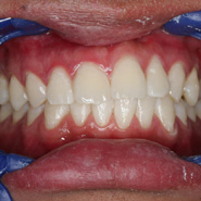 Photo of teeth after whitening
