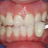 Photo 2 of teeth after whitening